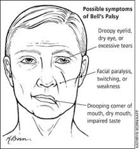 Bells Palsy Condition